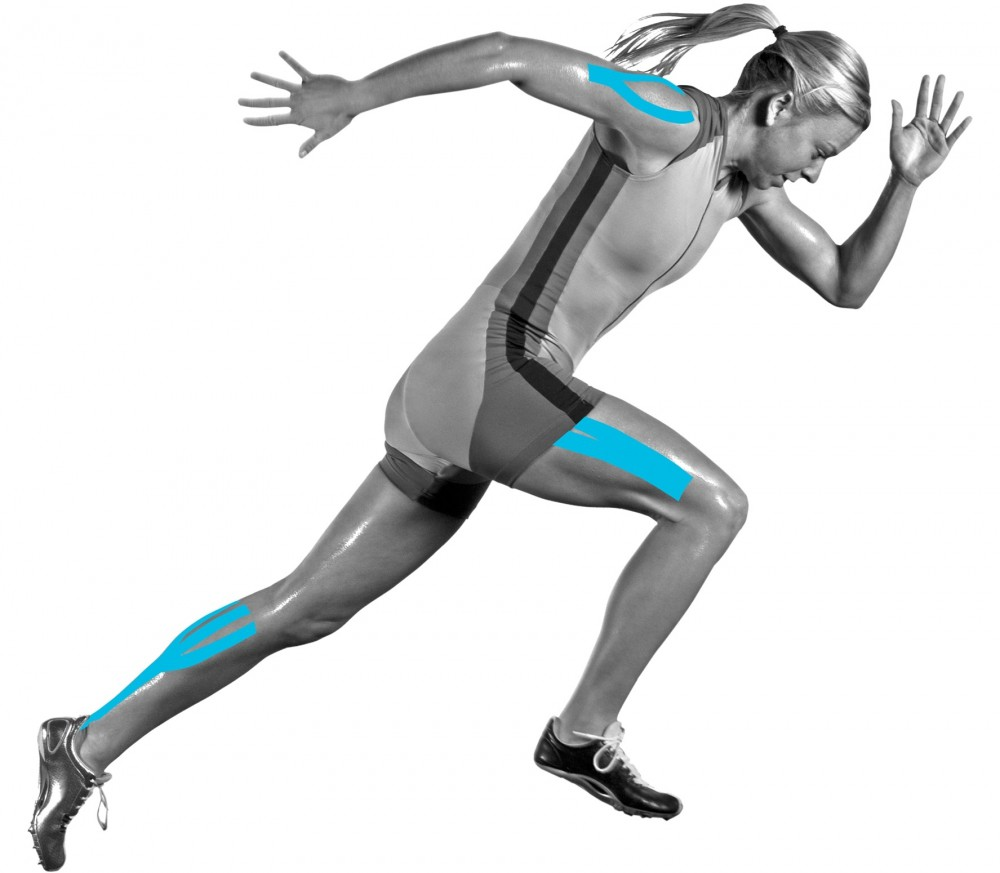 a history of the use of equine kinesiology tape Kinesio taping of the knee for chondramalacia •    kinesiology tape improves blood and lymphatic.